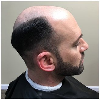 Men's Hair Replacement - Before
