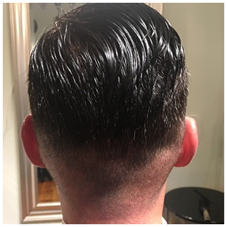 Men's Hair Replacement - After